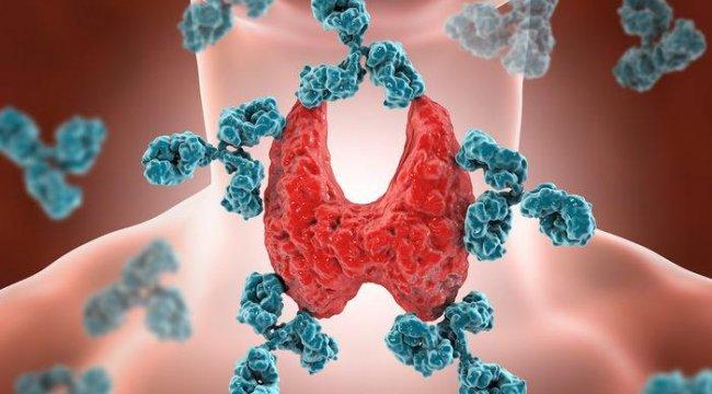 Hashimoto hastalığı belirtileri ve tedavisi nedir?